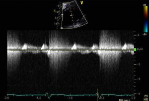 CWDoppler of MR